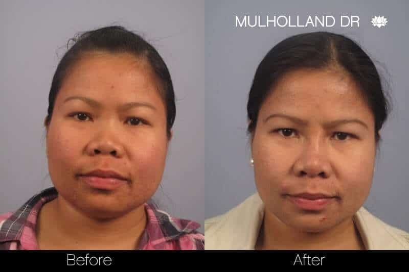 5 Minute Nose Job - Before and After Gallery – Photo 11