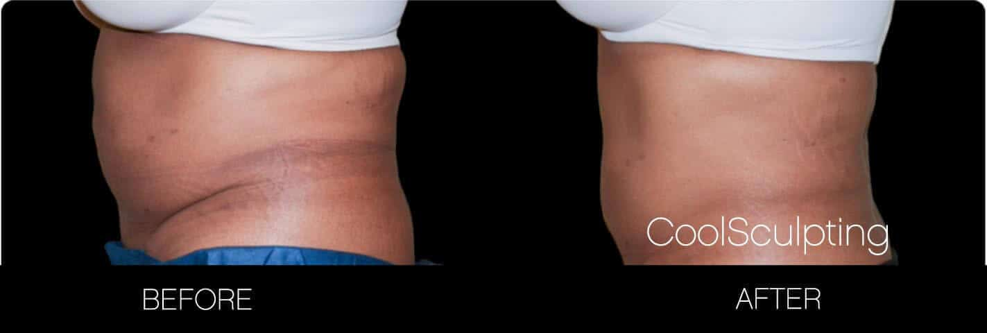 CoolSculpting - Before and After Gallery – Photo 12