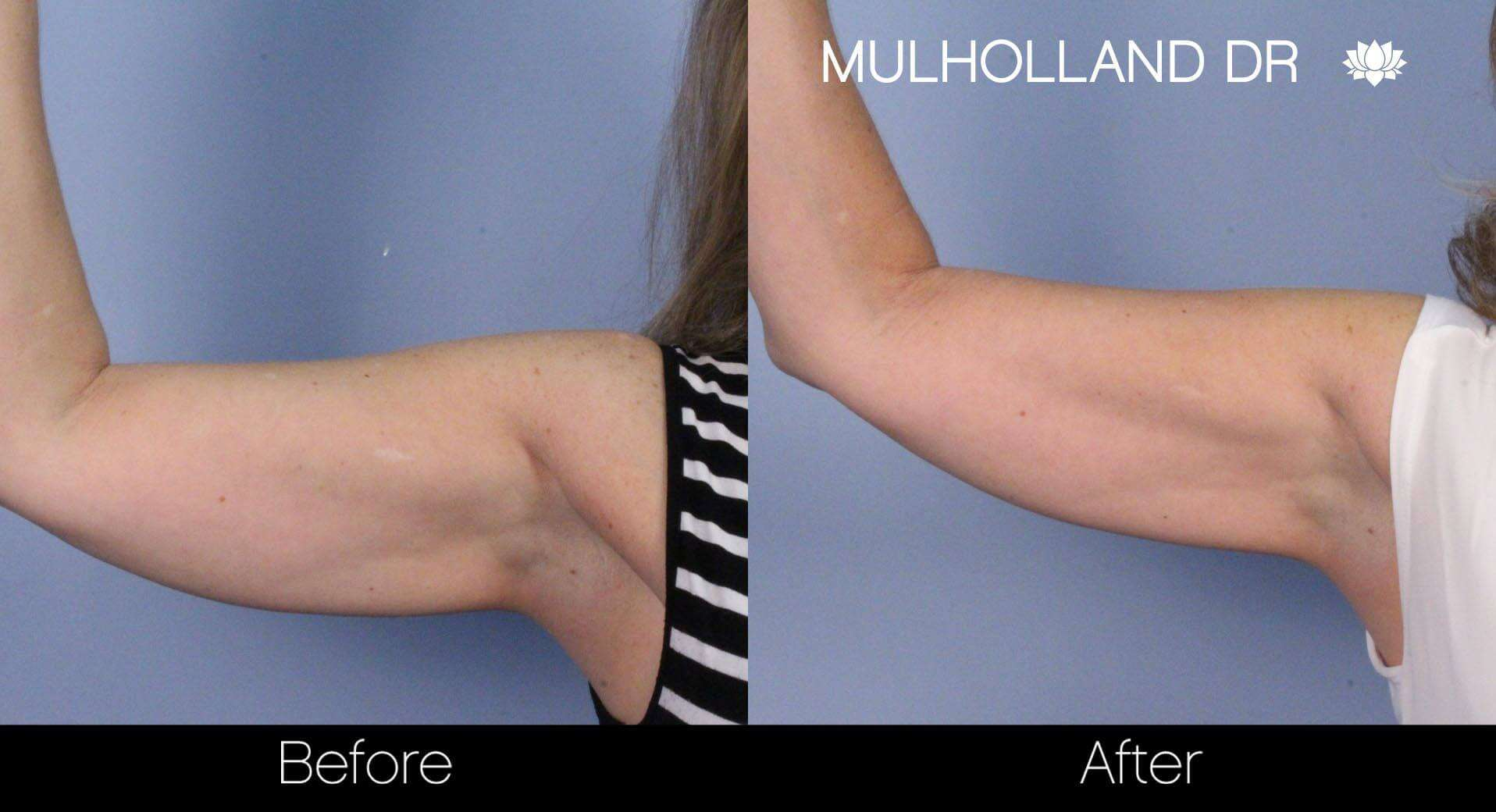 SculpSure - Before and After Gallery – Photo 12
