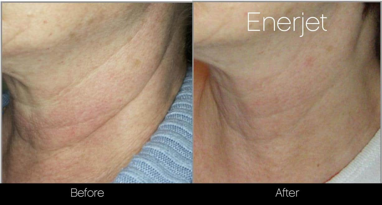 EnerJet Treatment - Before and After Gallery – Photo 14