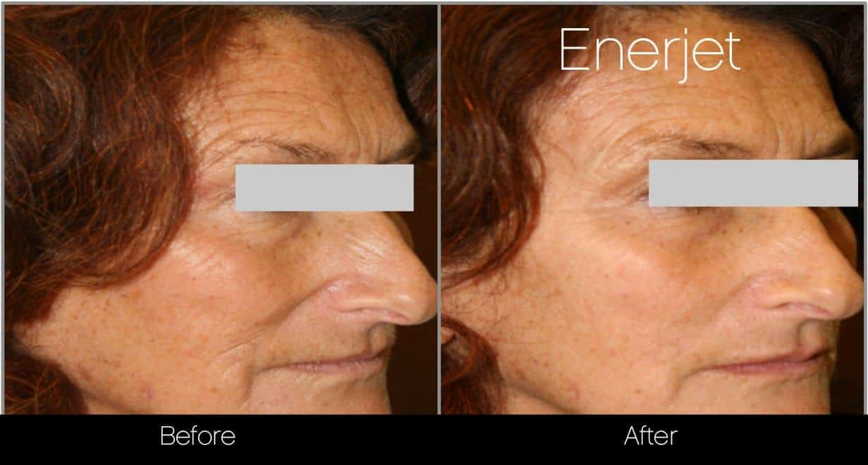 EnerJet Treatment - Before and After Gallery – Photo 15
