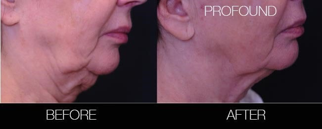 Non-Surgical Facelift - Before and After Gallery – Photo 15