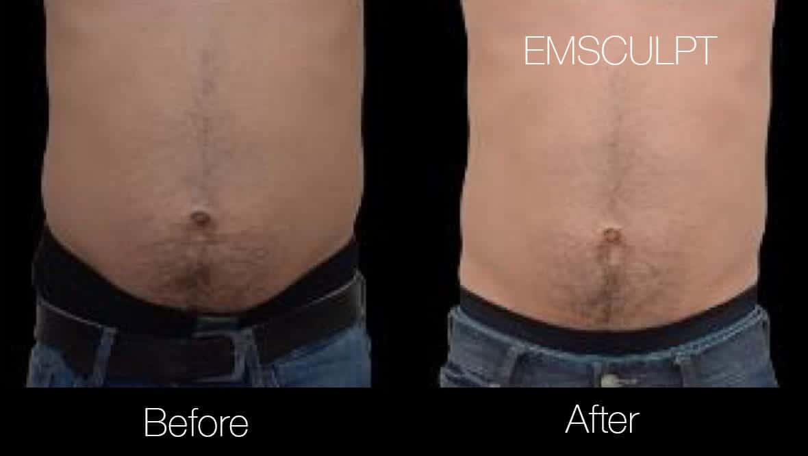 Emsculpt - Before and After Gallery – Photo 15
