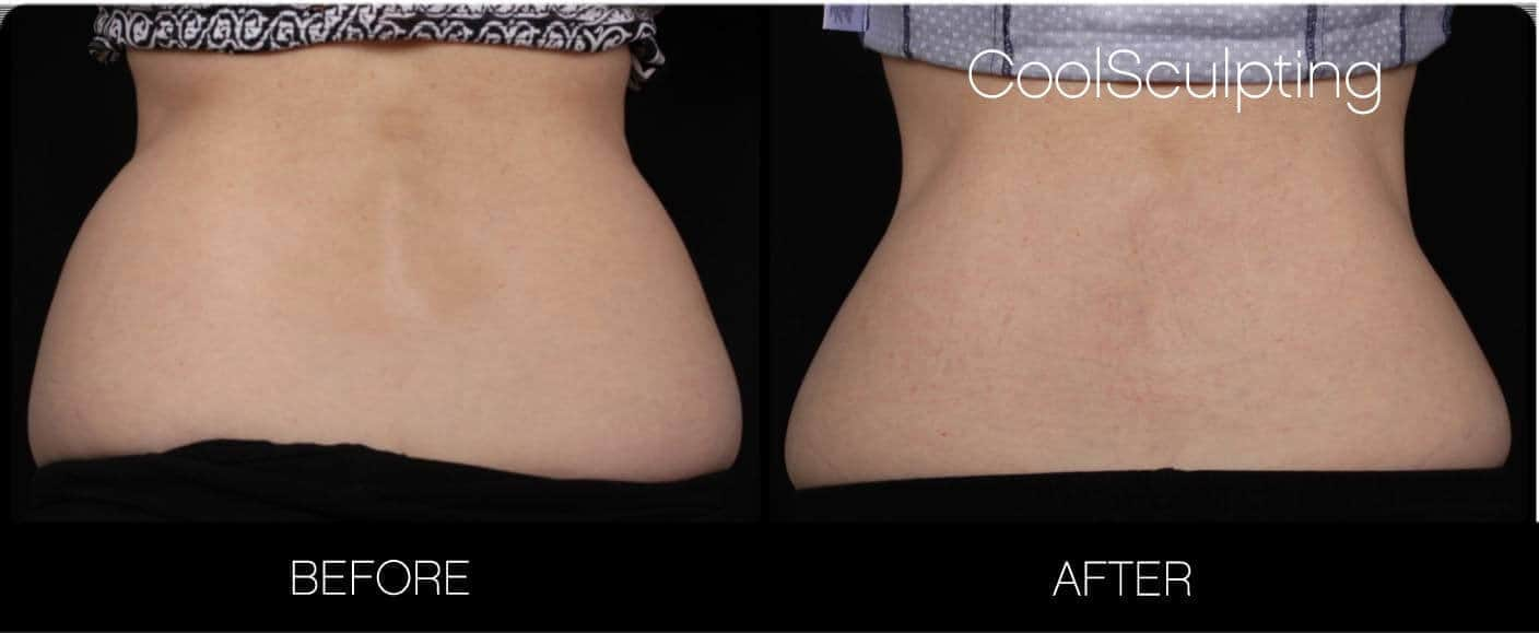 CoolSculpting - Before and After Gallery – Photo 16