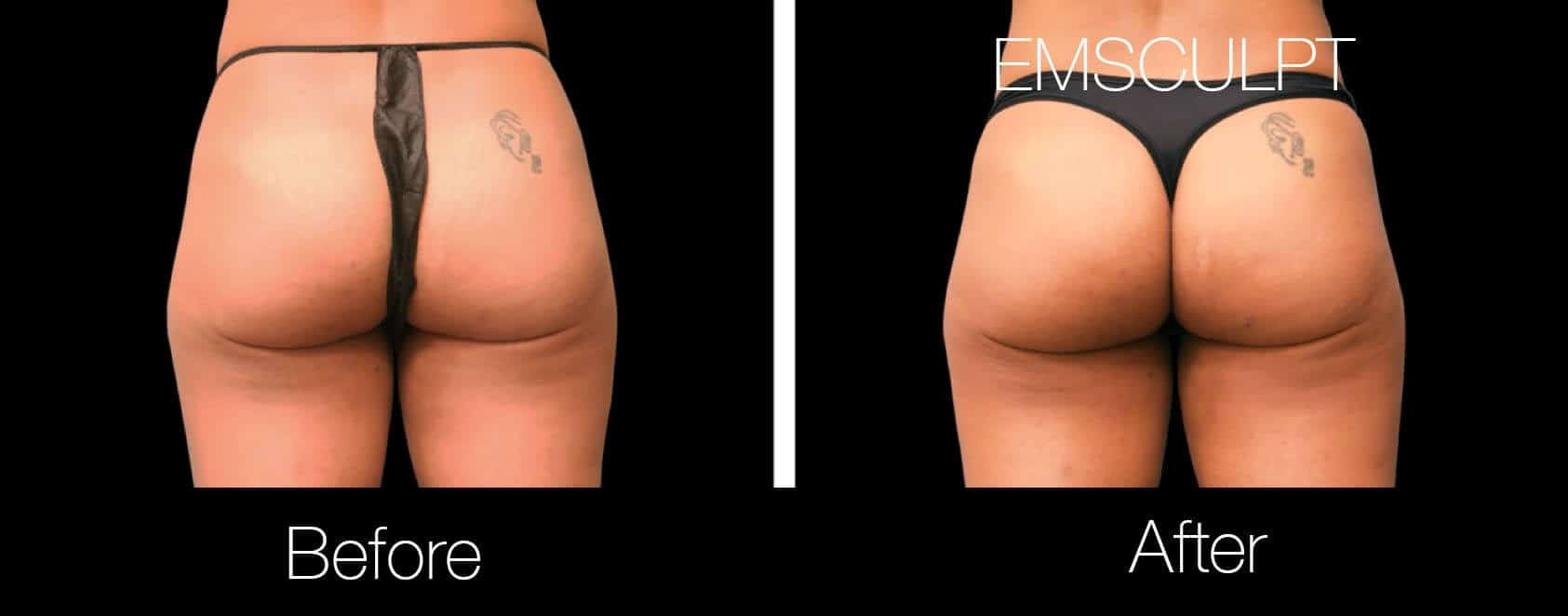 Emsculpt - Before and After Gallery – Photo 16