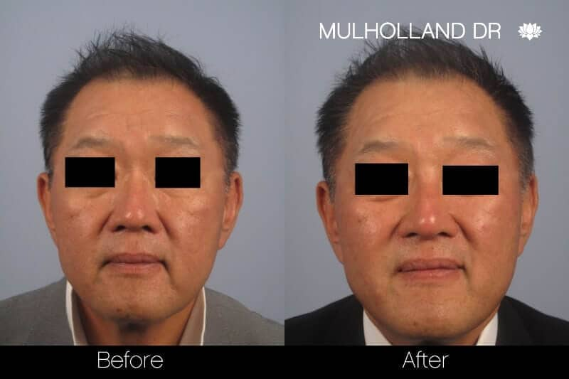5 Minute Nose Job - Before and After Gallery – Photo 17