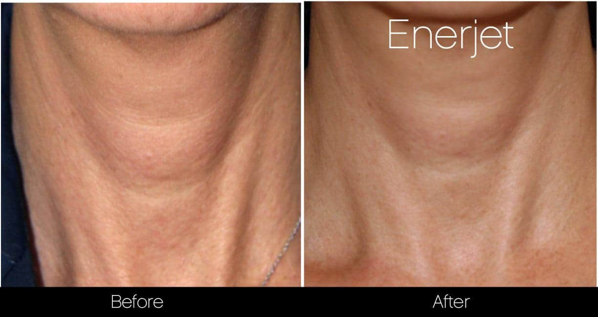 EnerJet Treatment - Before and After Gallery – Photo 17