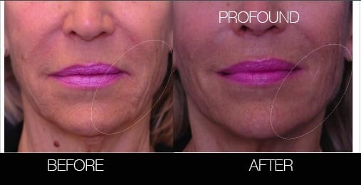 Non-Surgical Facelift - Before and After Gallery – Photo 17
