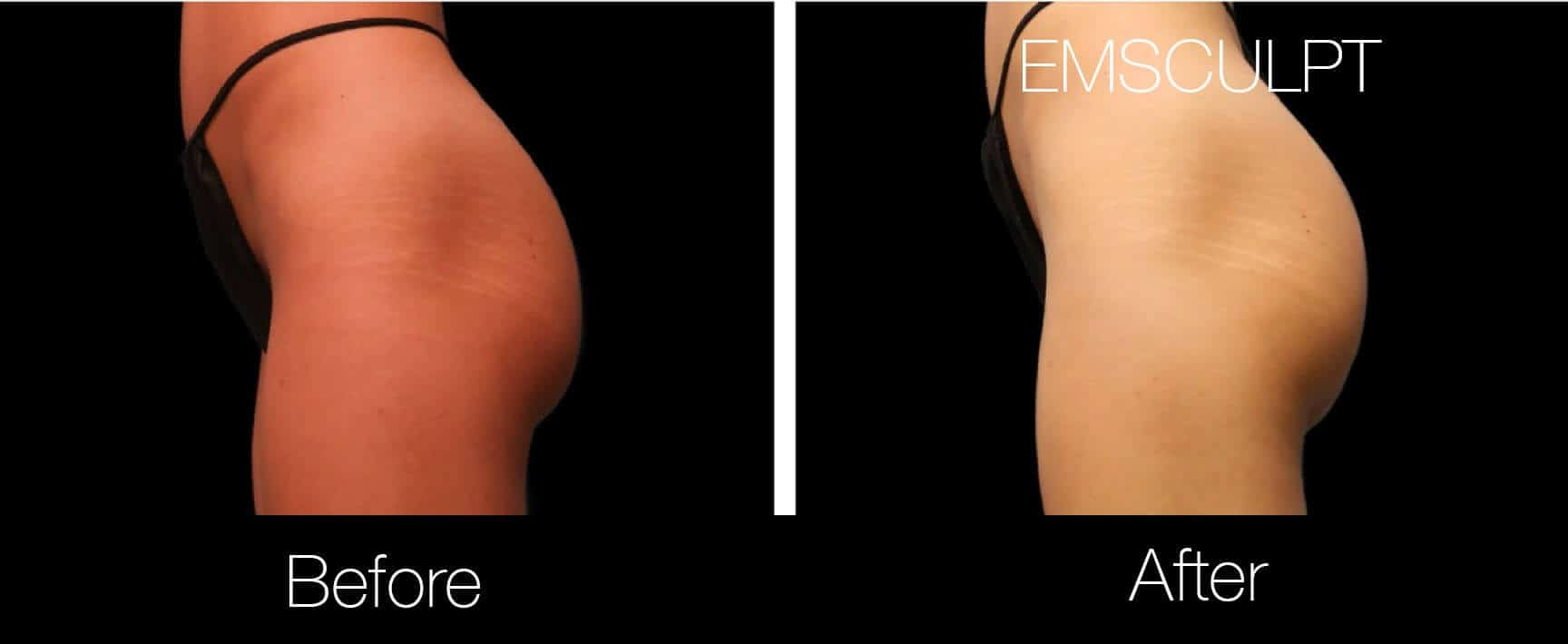 Emsculpt - Before and After Gallery – Photo 17