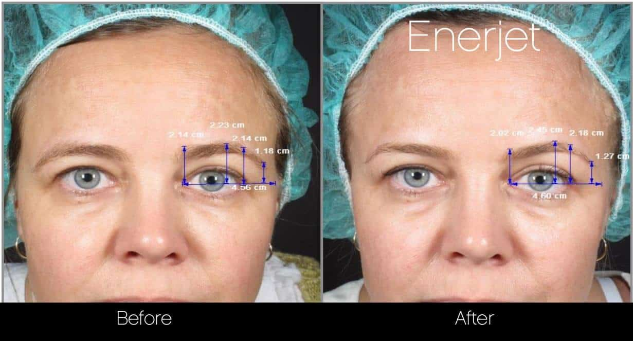 EnerJet Treatment - Before and After Gallery – Photo 18