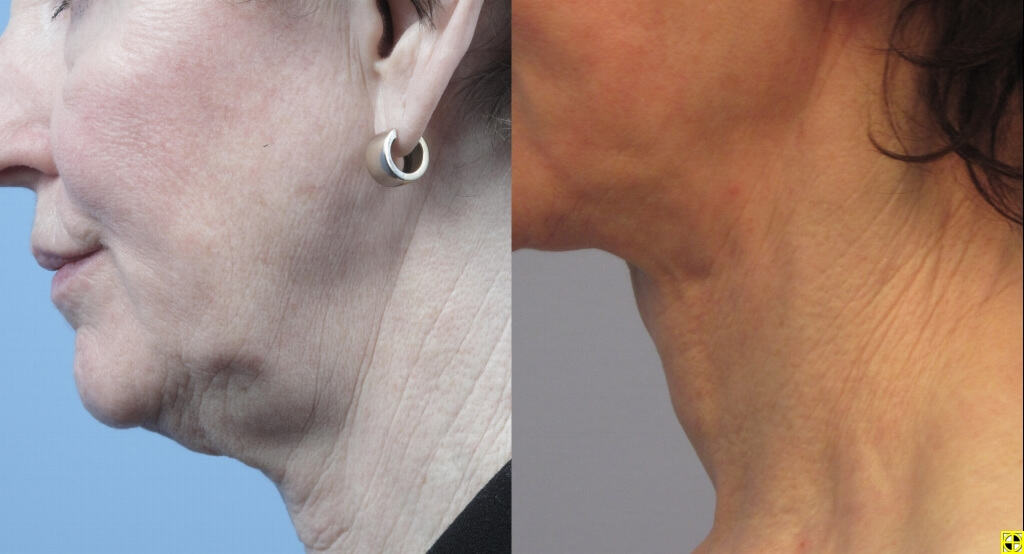 Non-Surgical Facelift - Before and After Gallery – Photo 19