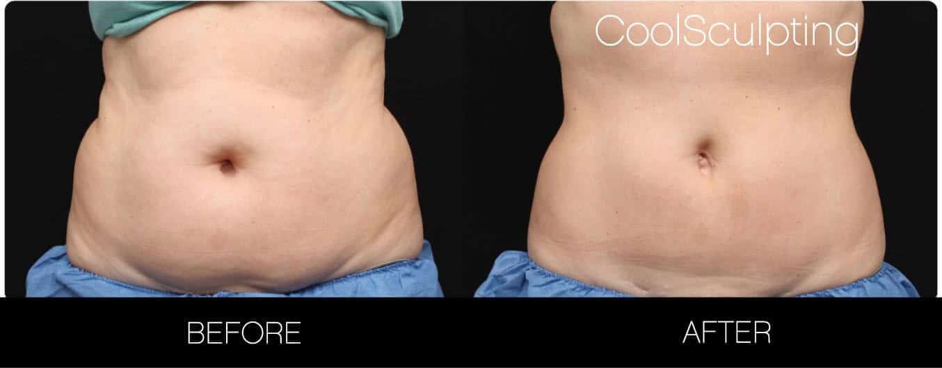 CoolSculpting - Before and After Gallery – Photo 19