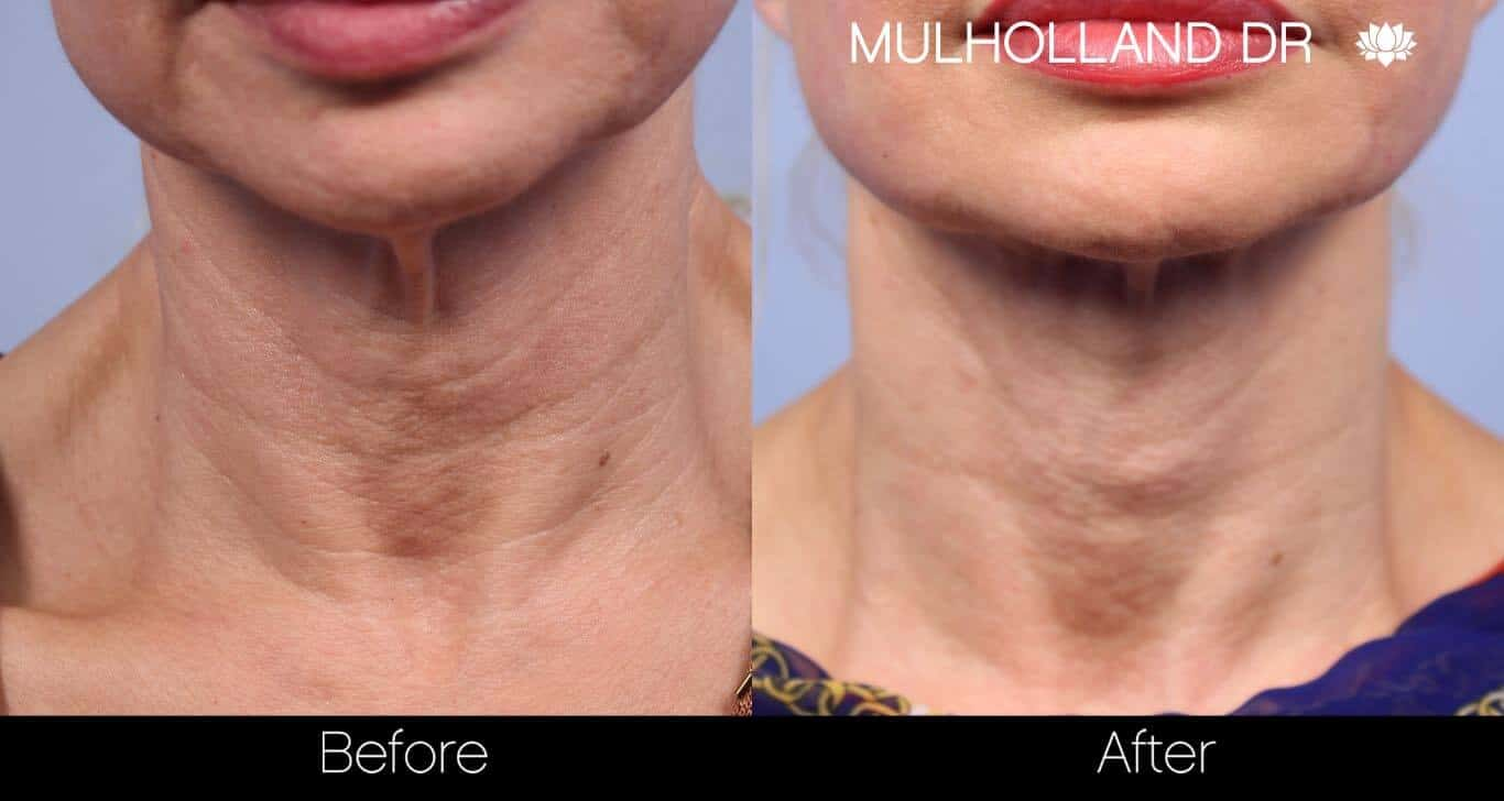 Non-Surgical Facelift - Before and After Gallery – Photo 21