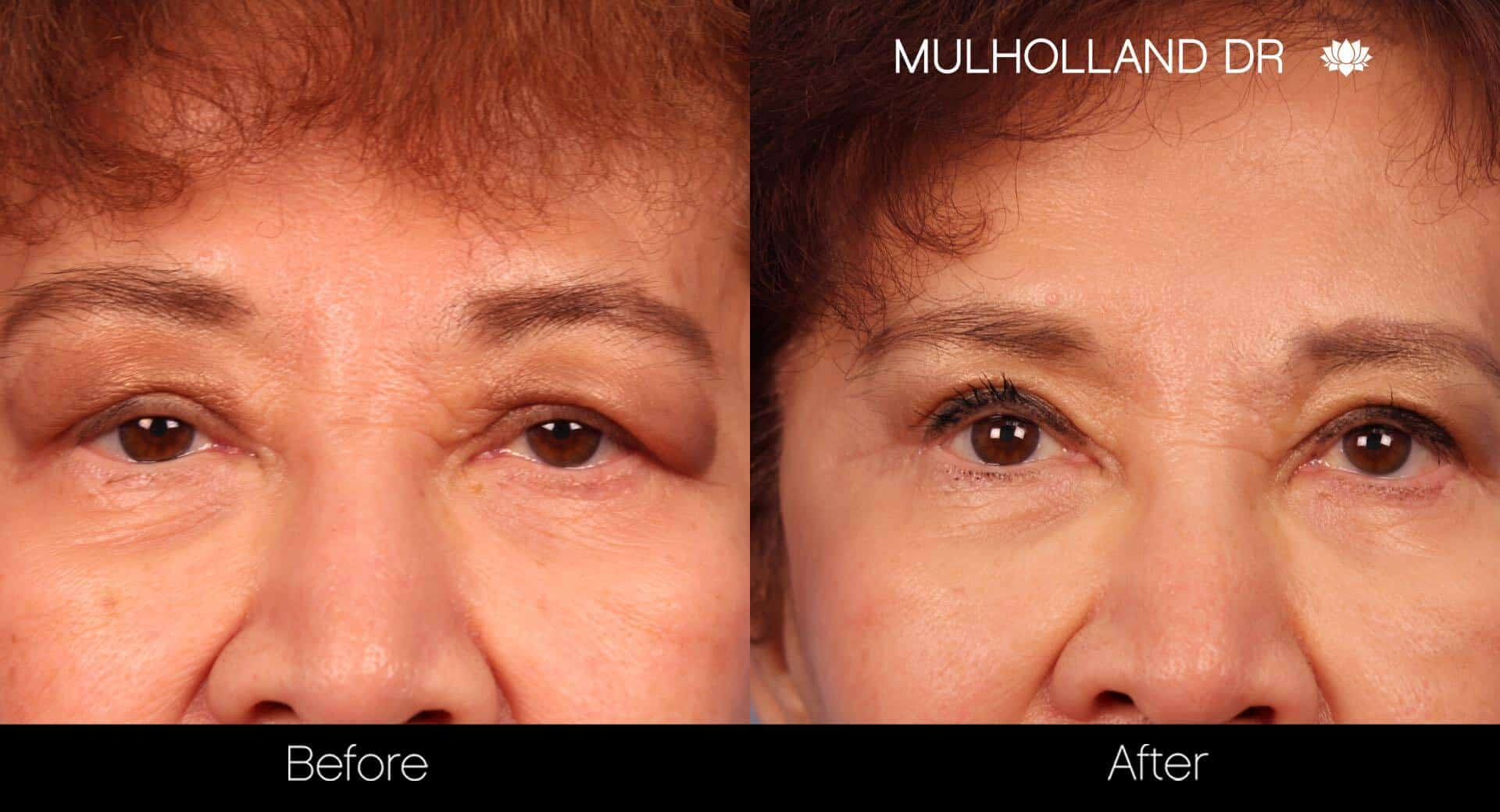 Blepharoplasty - Before and After Gallery – Photo 20