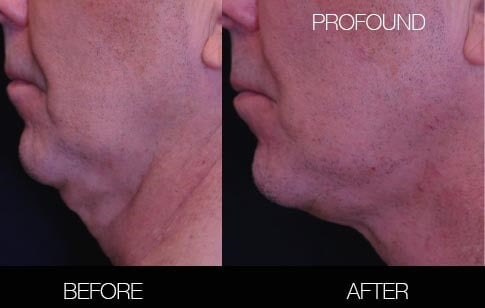 Non-Surgical Facelift - Before and After Gallery – Photo 22