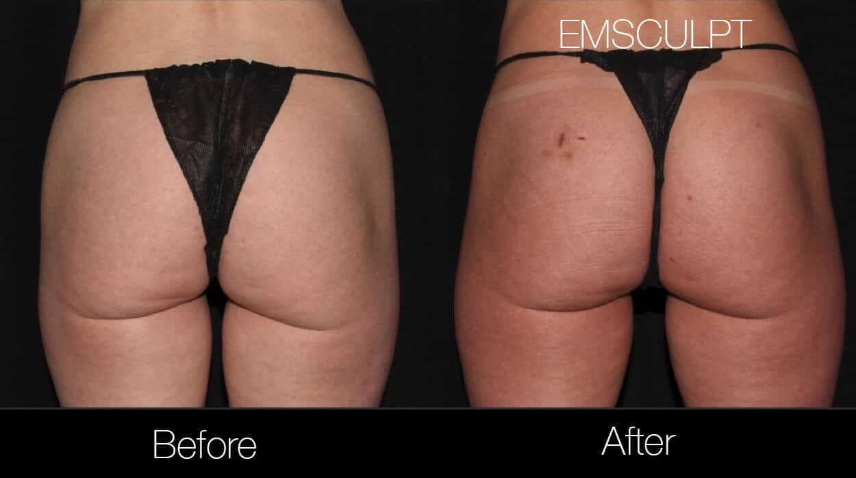 Emsculpt - Before and After Gallery – Photo 22