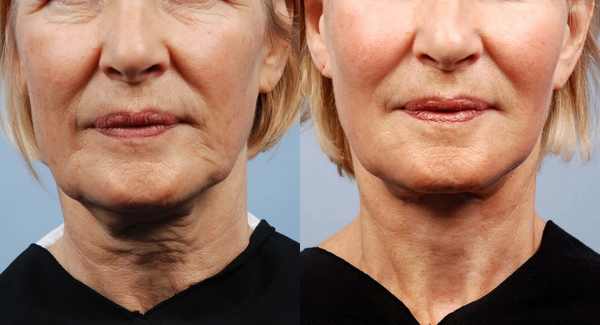 Non-Surgical Facelift - Before and After Gallery – Photo 23