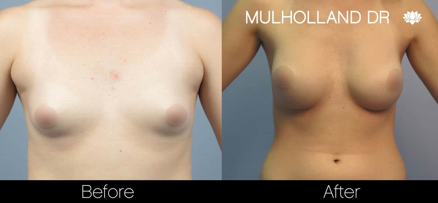 Breast Augmentation - Before and After Gallery – Photo 22
