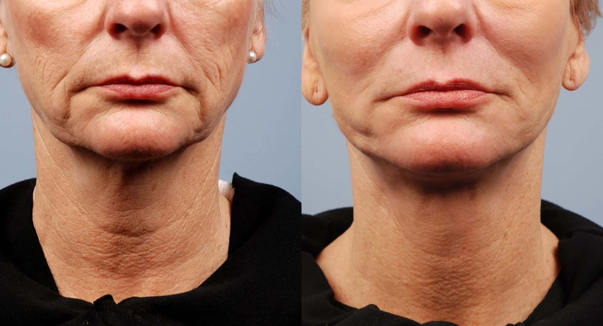 Non-Surgical Facelift - Before and After Gallery – Photo 25