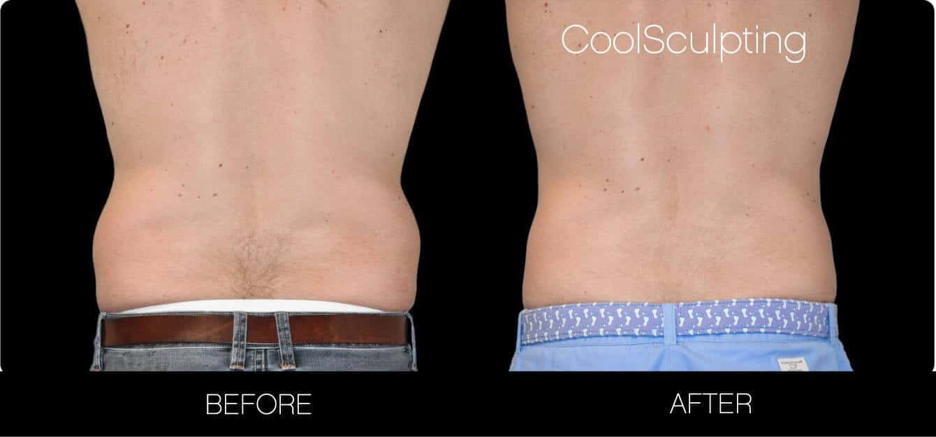 CoolSculpting - Before and After Gallery – Photo 24