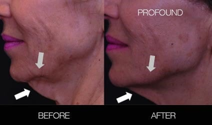 Non-Surgical Facelift - Before and After Gallery – Photo 18
