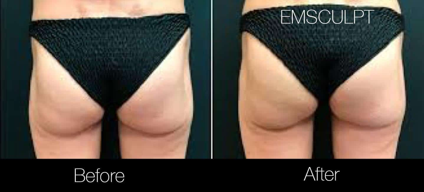 Emsculpt - Before and After Gallery – Photo 25