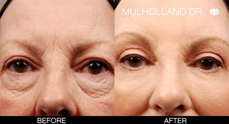 Blepharoplasty - Before and After Gallery – Photo 25
