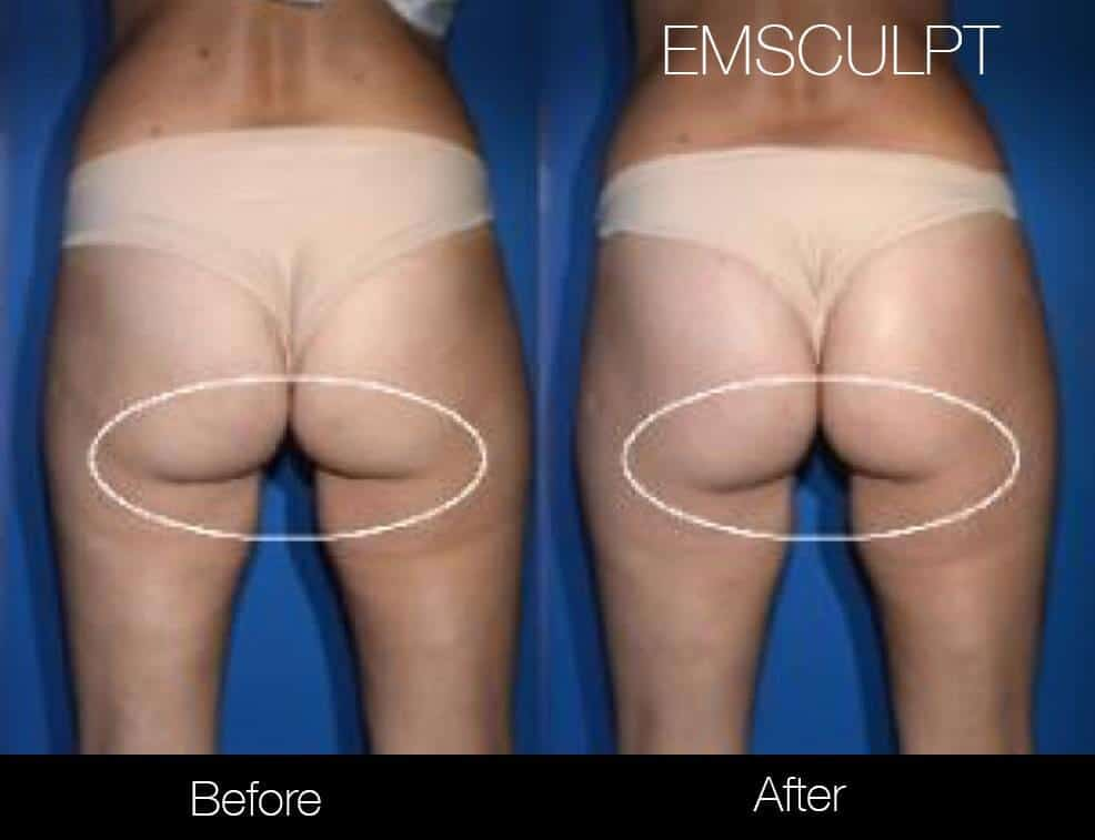 Emsculpt - Before and After Gallery – Photo 26