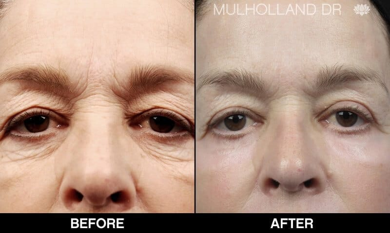Blepharoplasty - Before and After Gallery – Photo 26