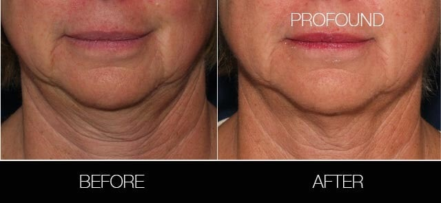 Non-Surgical Facelift - Before and After Gallery – Photo 27