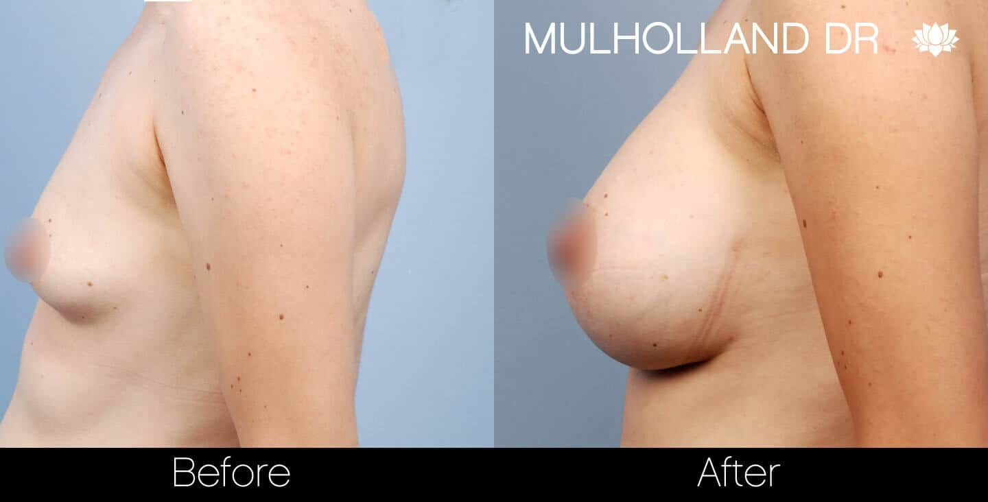 Breast Augmentation - Before and After Gallery – Photo 27