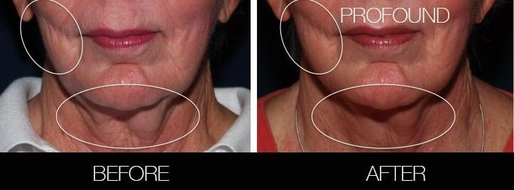 Non-Surgical Facelift - Before and After Gallery – Photo 28