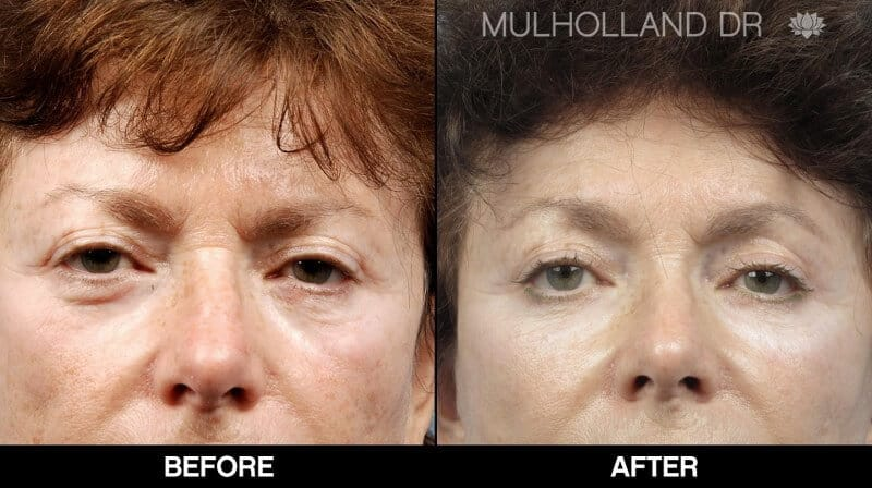 Blepharoplasty - Before and After Gallery – Photo 28