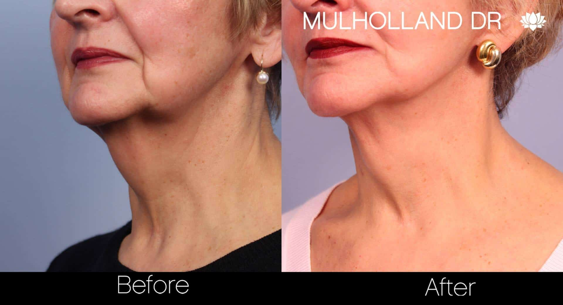 Non-Surgical Facelift - Before and After Gallery – Photo 29