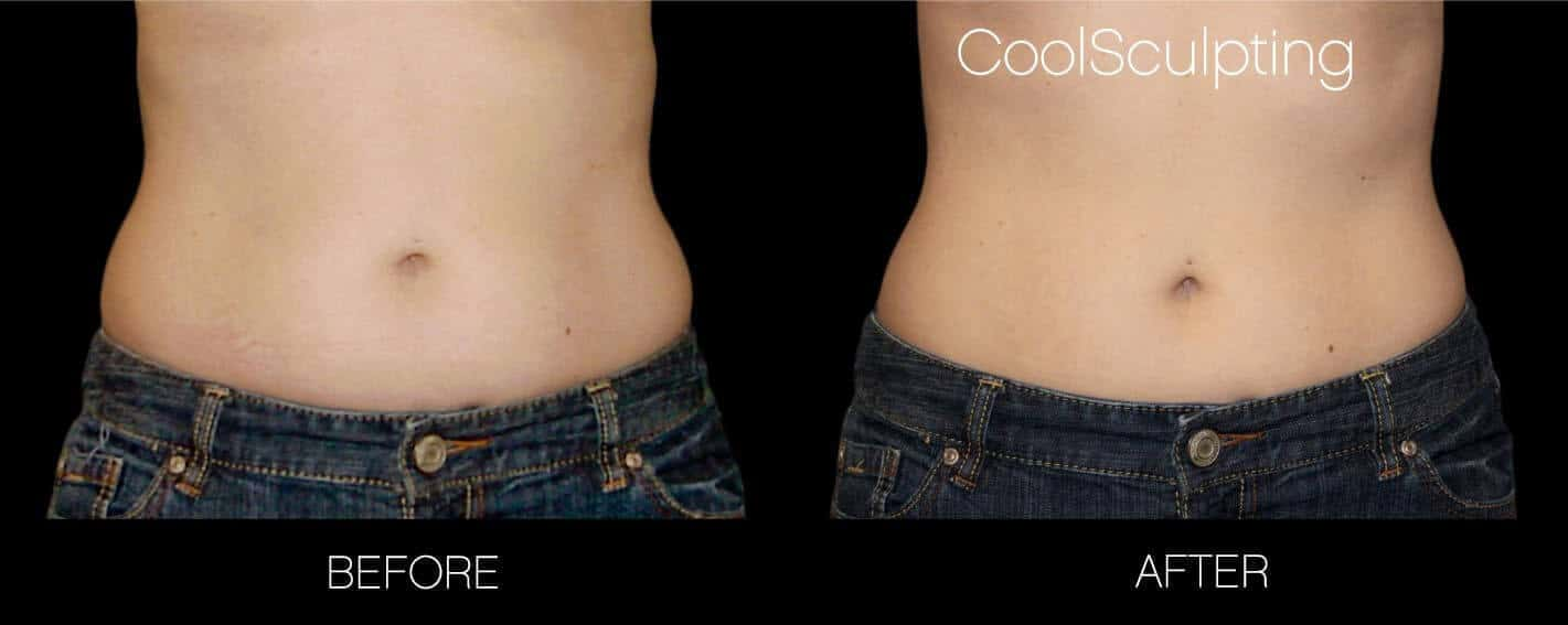CoolSculpting - Before and After Gallery – Photo 30
