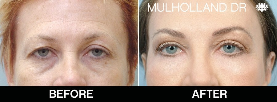 Blepharoplasty - Before and After Gallery – Photo 30