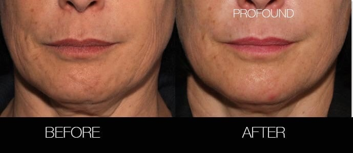 Non-Surgical Facelift - Before and After Gallery – Photo 31