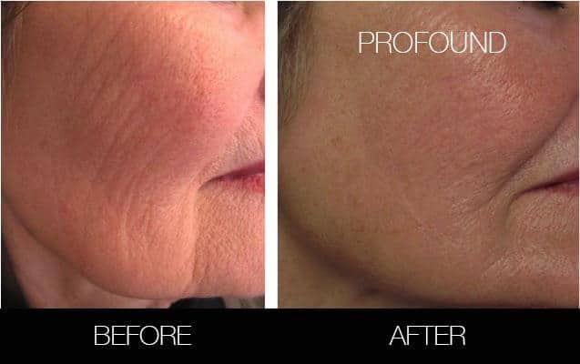 Non-Surgical Facelift - Before and After Gallery – Photo 33