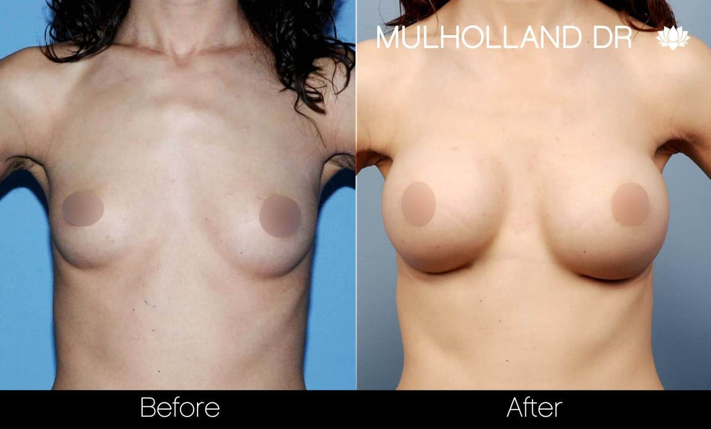 Breast Augmentation - Before and After Gallery – Photo 33