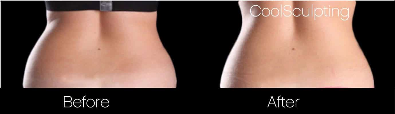 CoolSculpting - Before and After Gallery – Photo 34