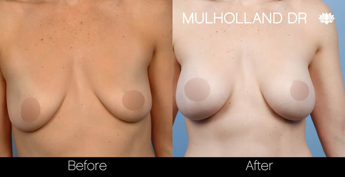 Breast Augmentation - Before and After Gallery – Photo 36