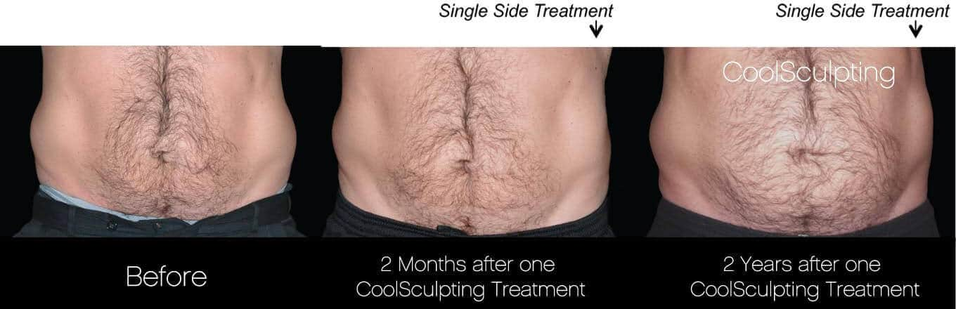 CoolSculpting - Before and After Gallery – Photo 37
