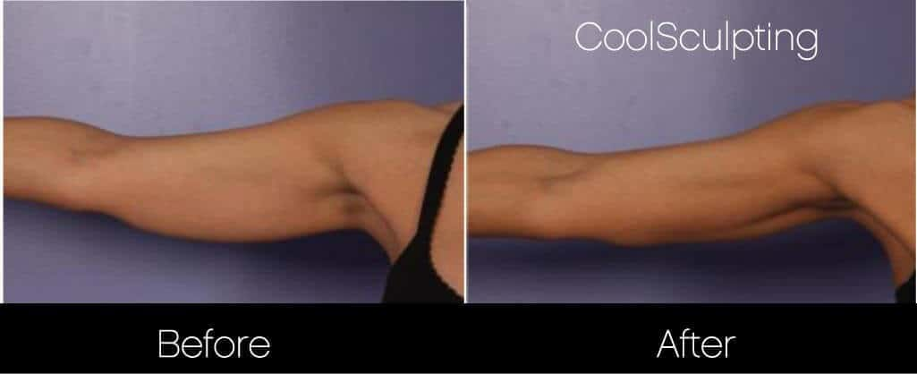 CoolSculpting - Before and After Gallery – Photo 38
