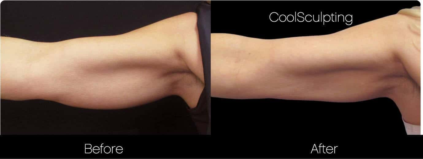 CoolSculpting - Before and After Gallery – Photo 39