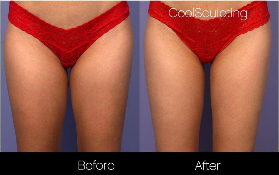 CoolSculpting - Before and After Gallery – Photo 43