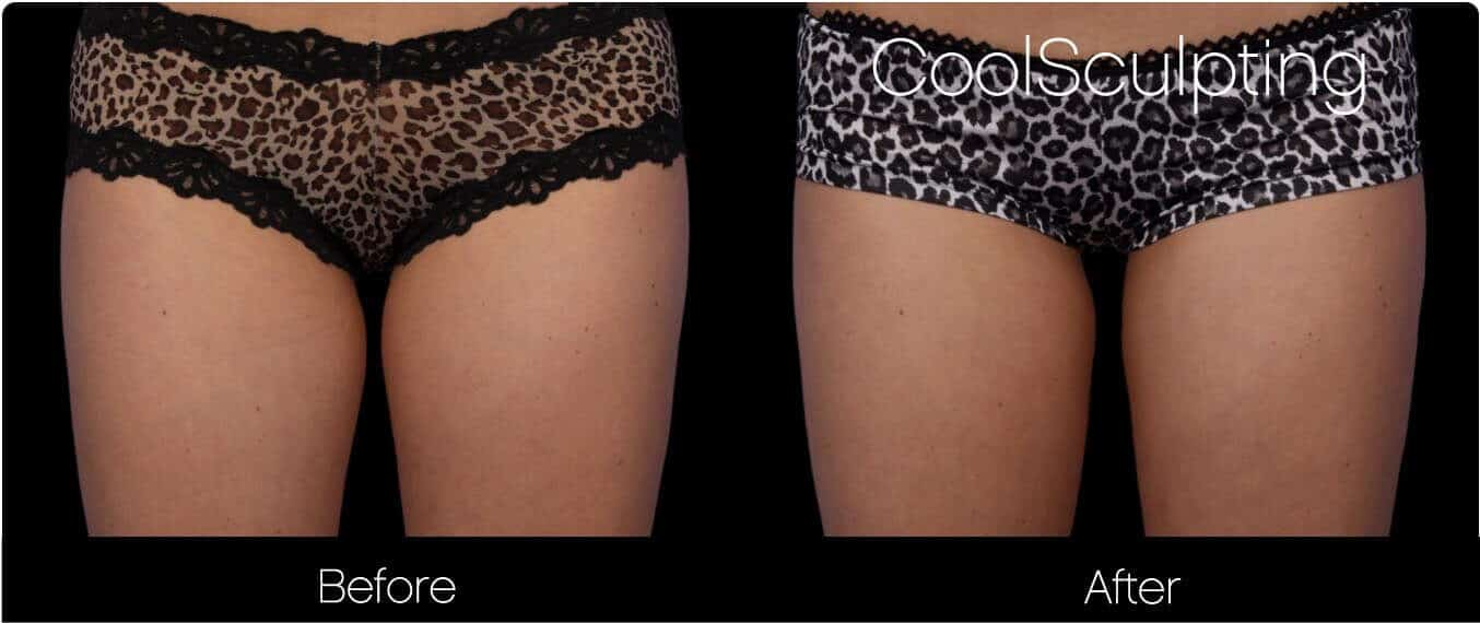 CoolSculpting - Before and After Gallery – Photo 44