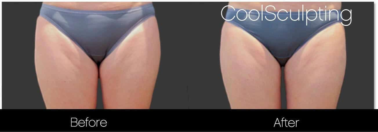 CoolSculpting - Before and After Gallery – Photo 45