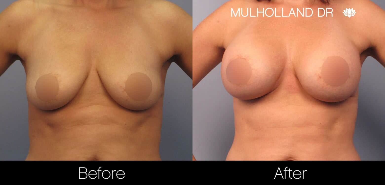 Breast Augmentation - Before and After Gallery – Photo 45