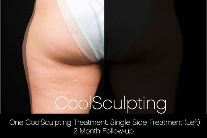 CoolSculpting - Before and After Gallery – Photo 48