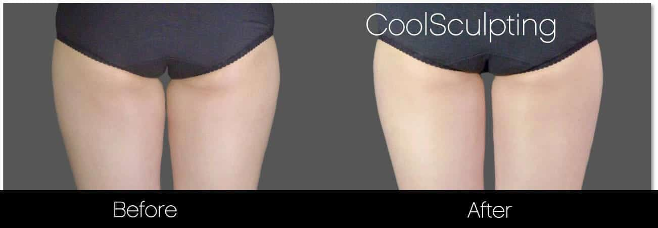 CoolSculpting - Before and After Gallery – Photo 51